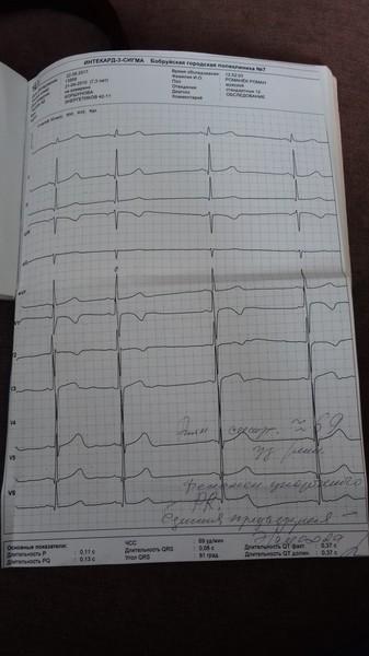 Плохая кардиограмма сердца что делать