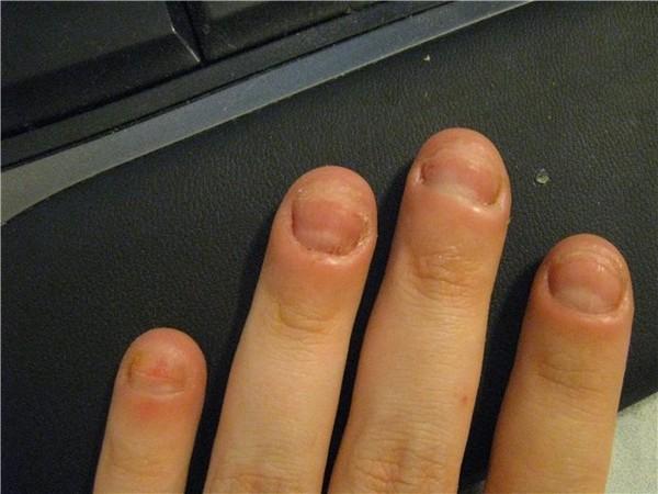 Грызущий ногти