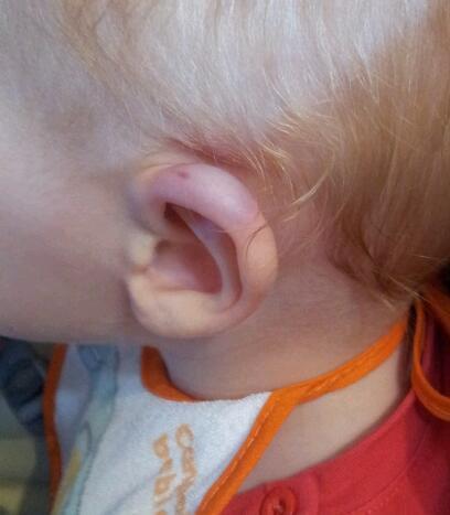 Травма уха!!! - Детское здоровье - Форум Дети Mail.Ru