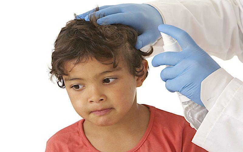 паразиты кожи головы человека